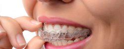 photo-service-mouthguards